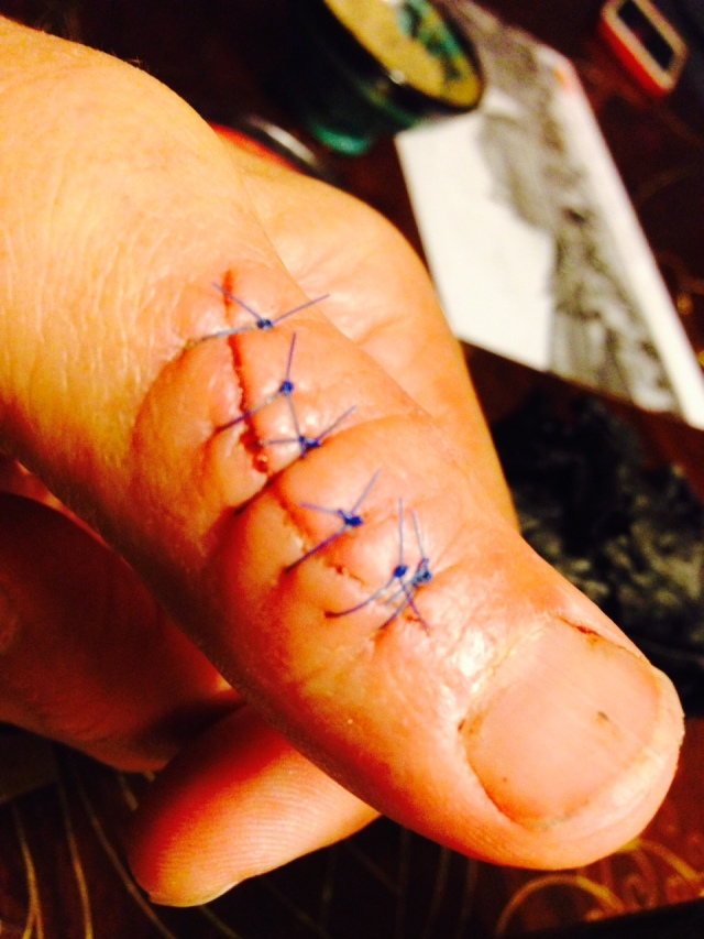 Six stitches